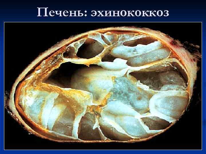 Эхинококкоз печени: симптомы, диагностика и лечениедиагностика и лечение печени и желчного пузыря