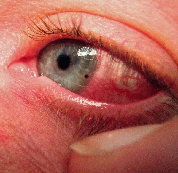 Эрозия (ссадина) роговицы  - симптомы болезни, профилактика и лечение эрозии (ссадині) роговицы , причины заболевания и его диагностика на eurolab