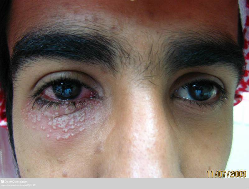 герпес на роговице глаза лечение