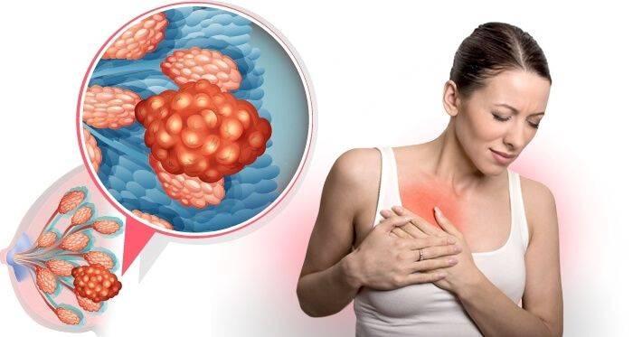 Лечение диффузной фиброзно-кистозной мастопатии: народные средства, медикаменты и гормональная терапия для избавления от новообразований в молочных железах, хирургическое вмешательство, а также диета для профилактики заболевания