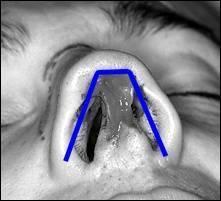 боль в носу при нажатии