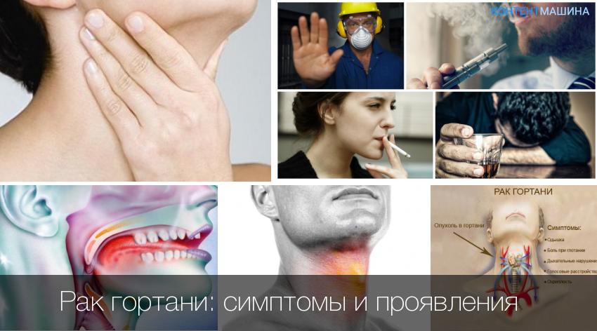 Можно ли вылечить рак горла, способы лечения, народные средства