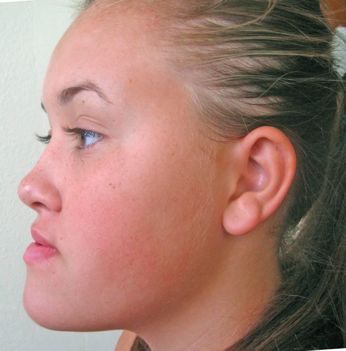 неправильный прикус нижняя челюсть вперед исправление