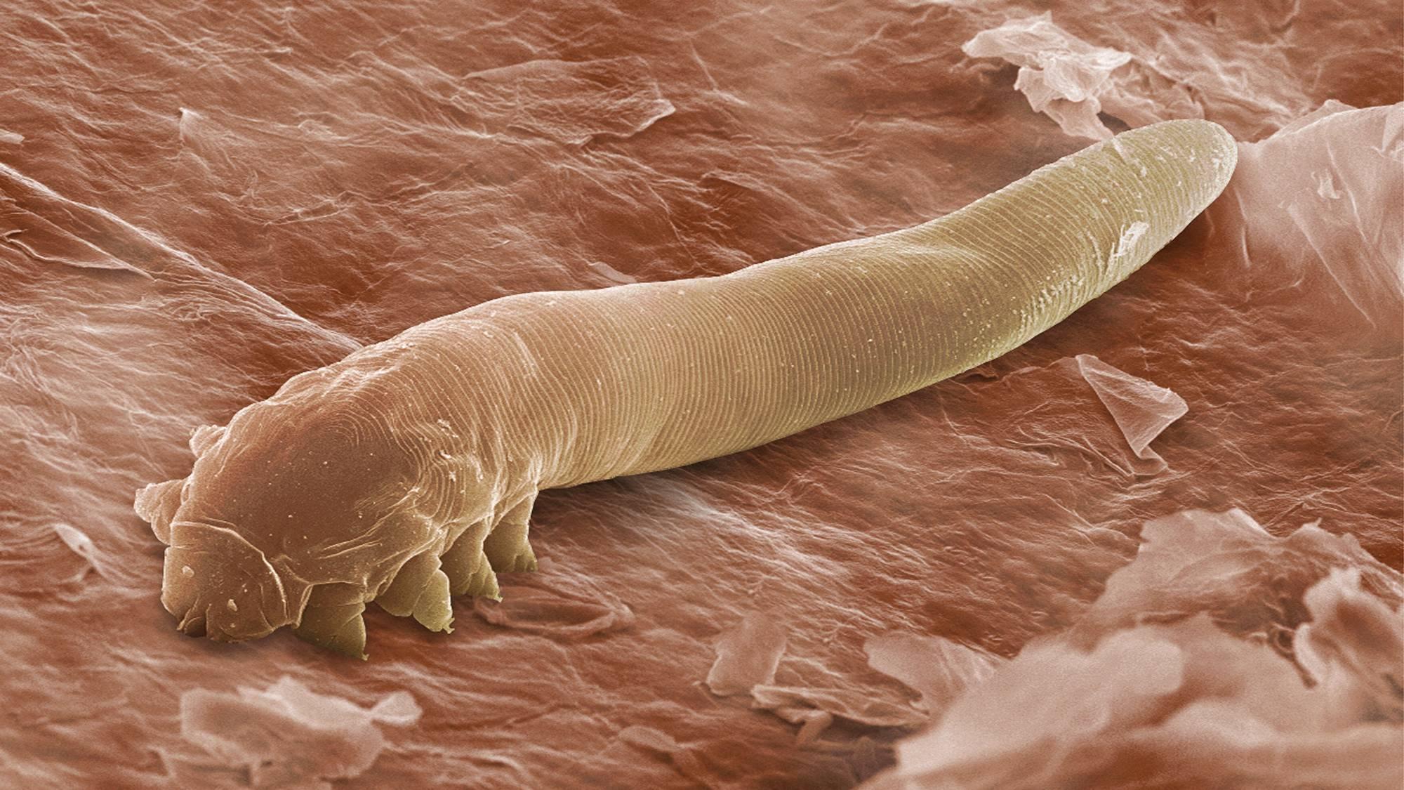 8 видов подкожных паразитов человека