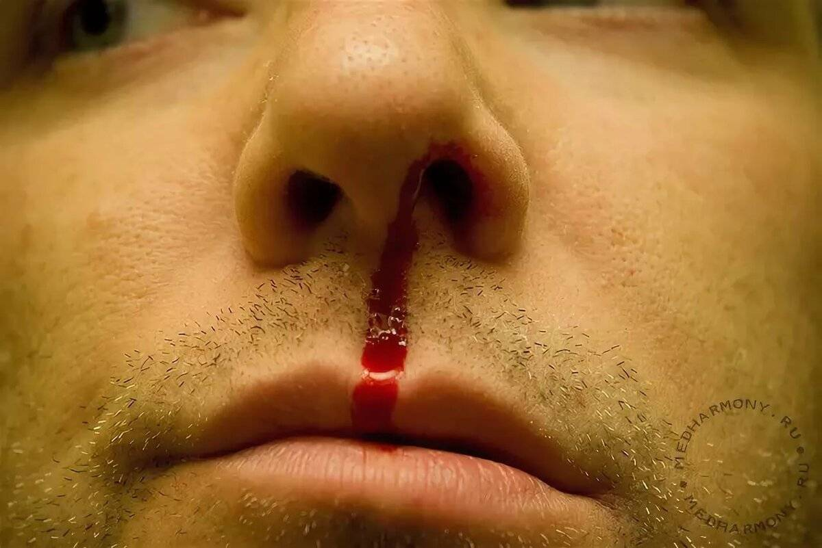 кровь пошла носом