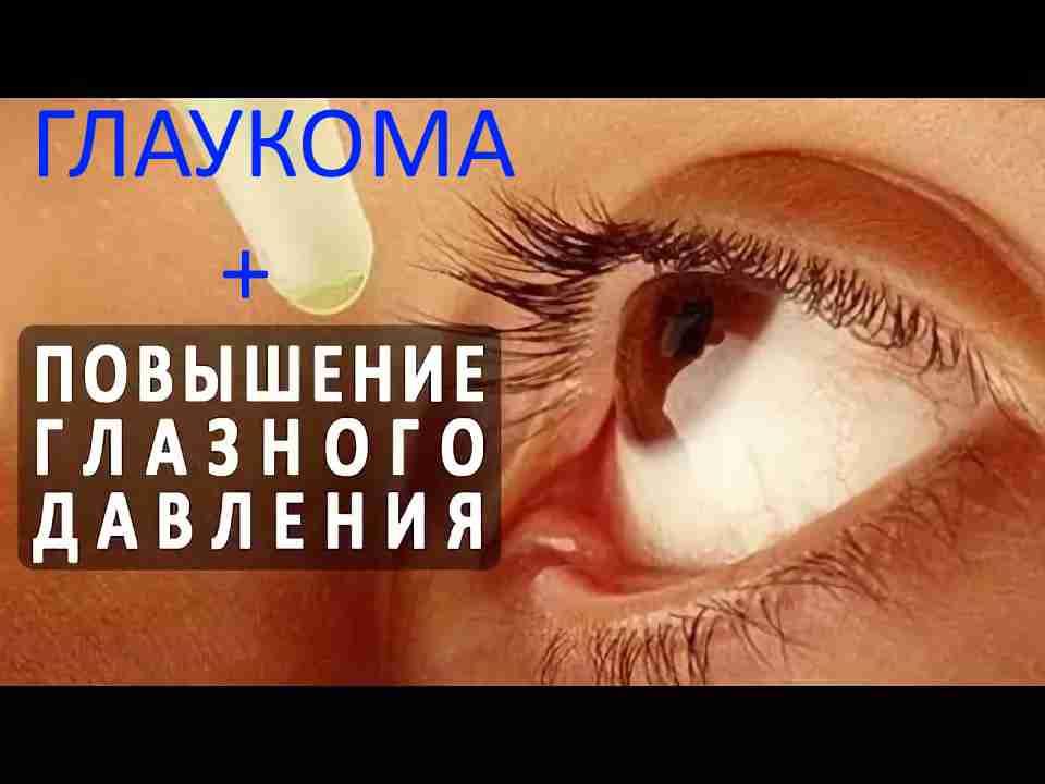 Можно ли полностью вылечит глаукому?