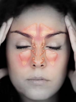 Фронтит острый и хронический - симптомы, лечение у взрослых и детей