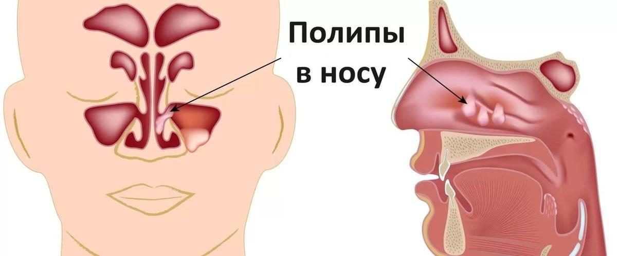 почему забивается нос