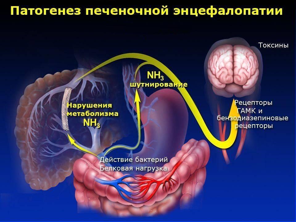 острая печеночная энцефалопатия
