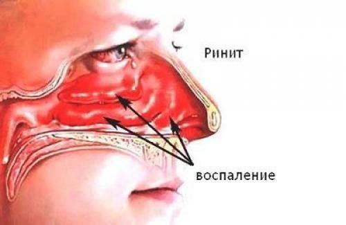Вазомоторный ринит синусит. чем отличается синусит от ринита и как лечить