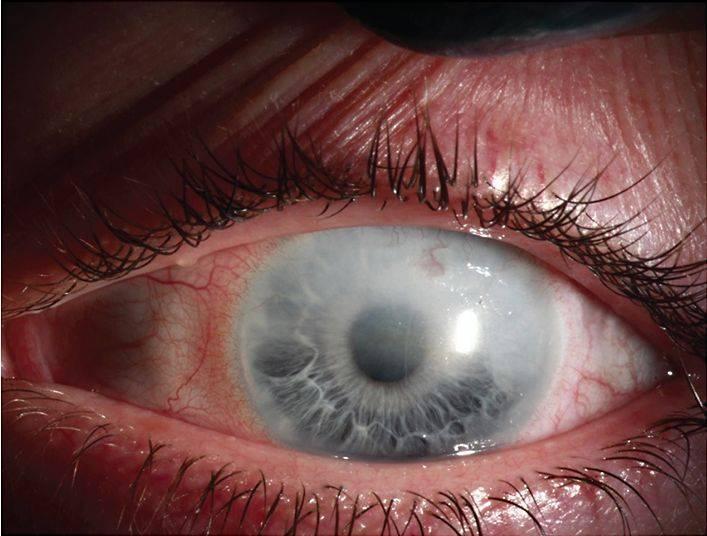 болезнь глаз кератит