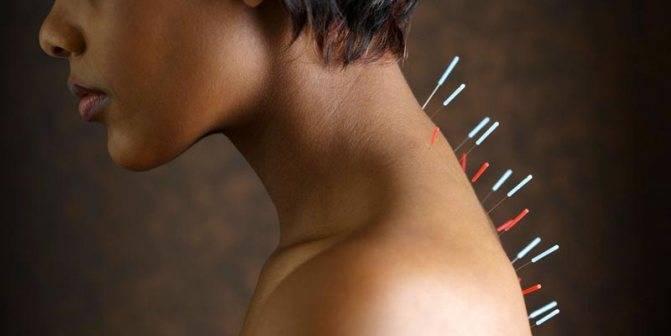 Лечение нейродермита иглоукалыванием