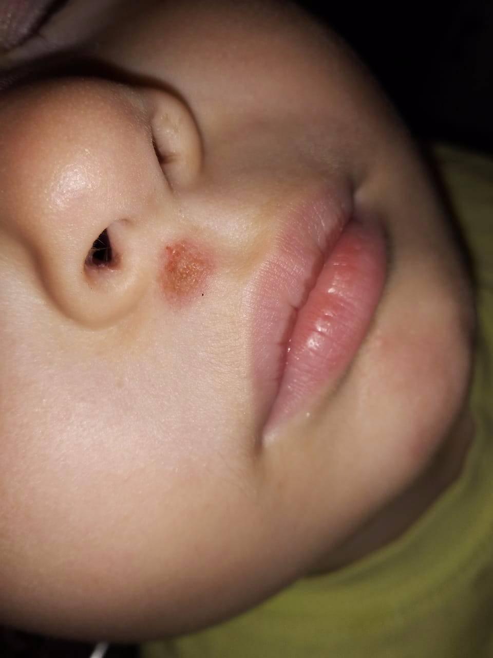 герпес на носу лечение в домашних условиях