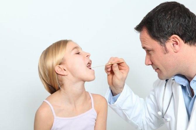 Симптомы и лечение хронического атрофического фарингита у взрослых и детей в домашних условиях