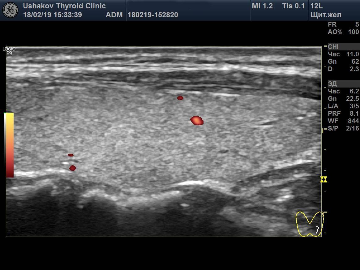 У ребенка усиленный кровоток в щитовидной железе