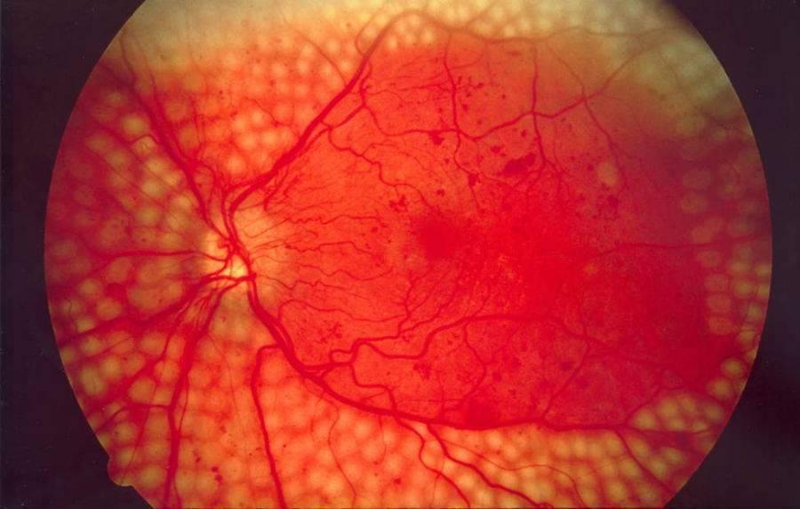 Ангиопатия сетчатки обоих глаз: что это такое