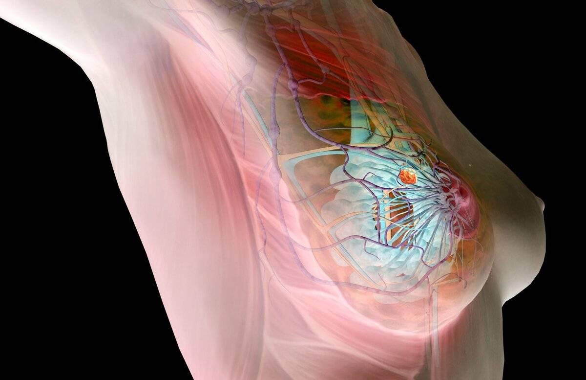 Почему болит грудь. причины, диагностика, лечение