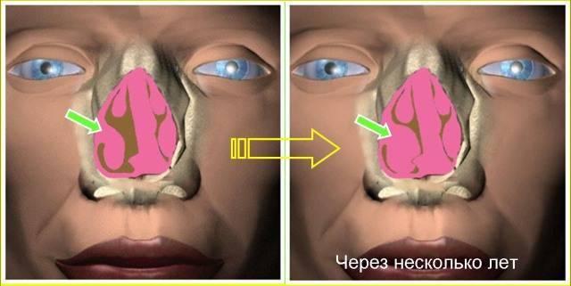 гипертрофия слизистой носовых ходов
