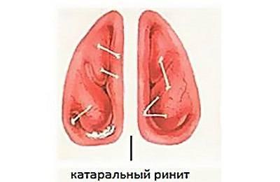 острый катаральный ринит