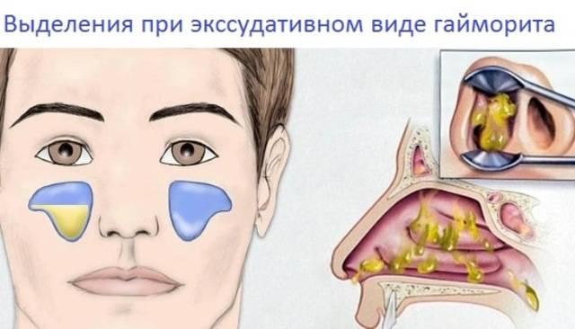 Верхнечелюстной синусит острый и хронический: лечение, что это такое