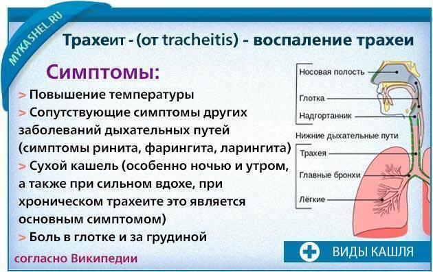Трахеит у взрослых: симптомы и лечение