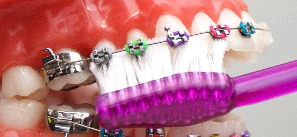 Как правильно ухаживать за брекет-системами: 10 рекомендаций стоматолога