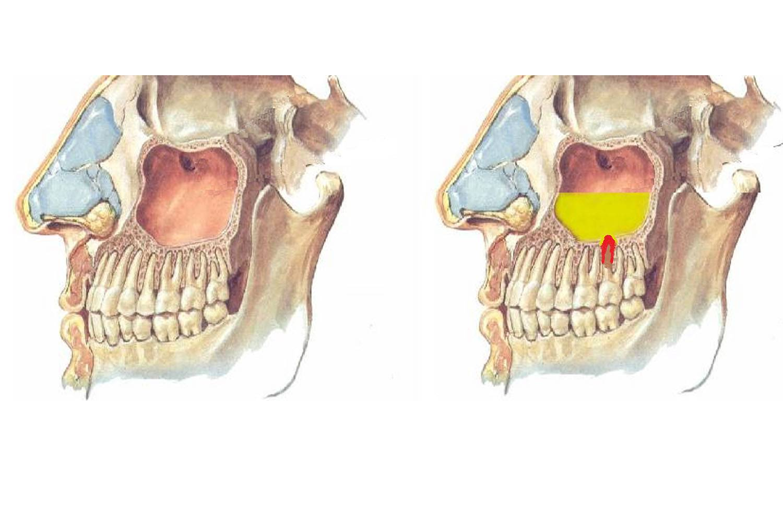 Перфорация гайморовой пазухи при удалении зуба