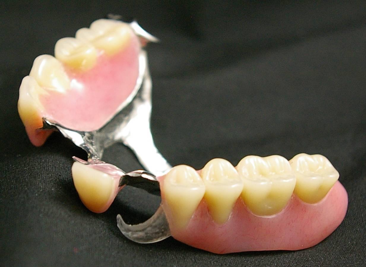 Шинирующий бюгельный протез— отличное восстановление потерянного зуба