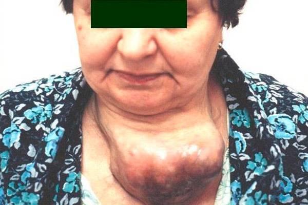 опухоль на щитовидке