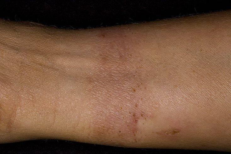 патогенез контактного дерматита