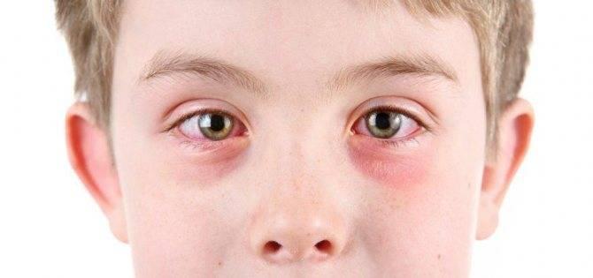 Лучшие глазные капли при конъюнктивите