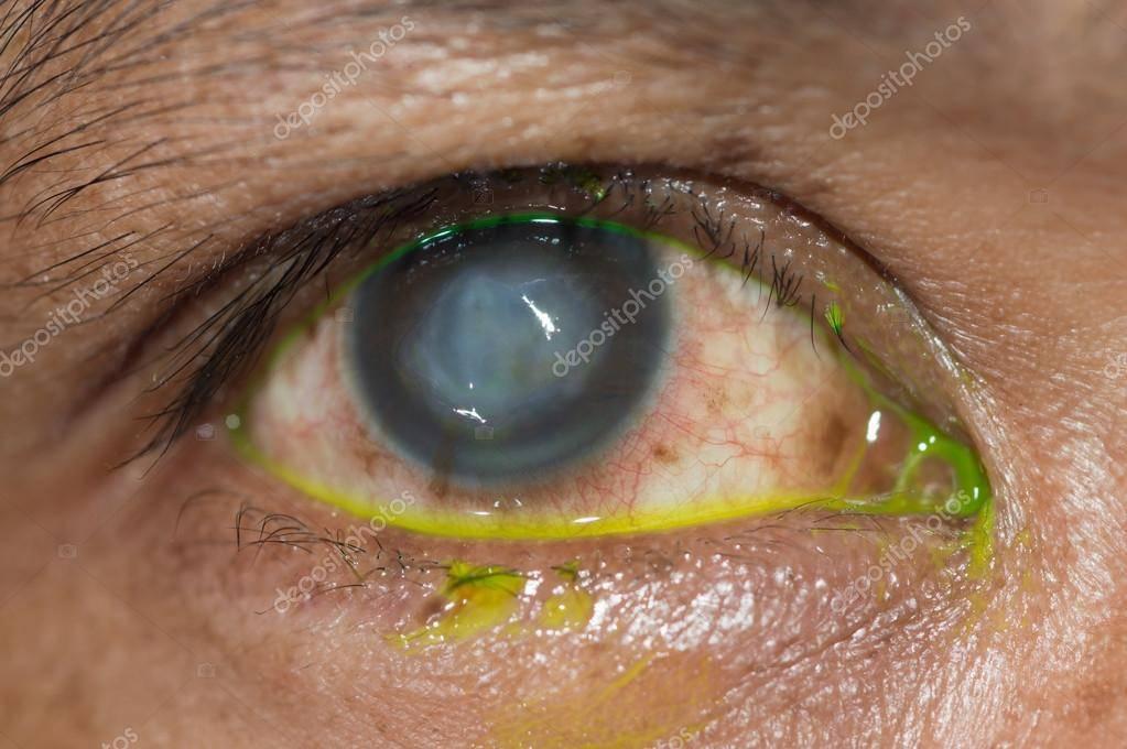 Язва роговицы глаза – лечение