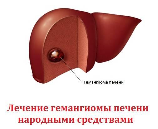 очаговое образование в печени гемангиома лечение