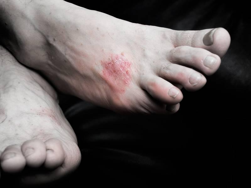 Псориаз ногтей, общая симптоматика и разновидности