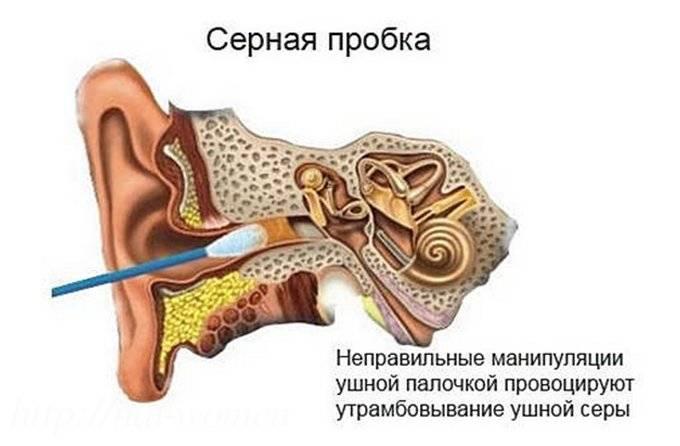 Причины заложенного уха: классификация и лечение
