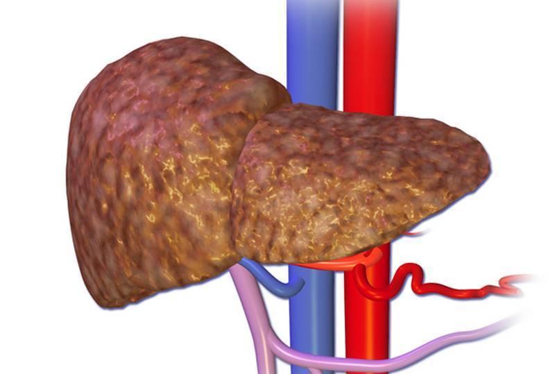 Как при гепатите с болит печень