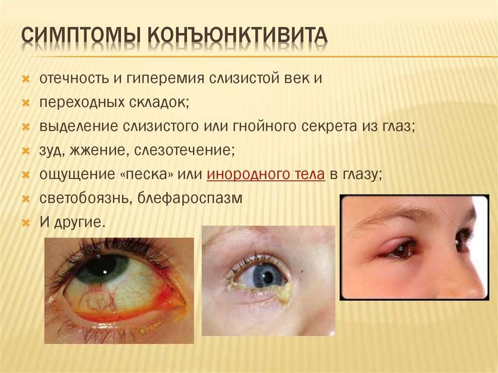 чем лечить вирусный конъюнктивит у ребенка