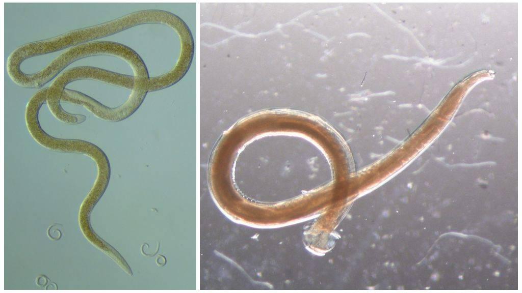 паразитический червь класса нематод