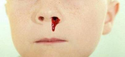 почему в носу образуются кровяные корочки