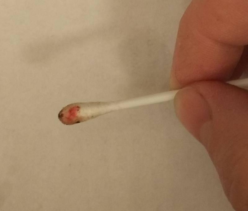 Кровь возле ушей. кровь в ухе: при чистке ватной палочкой и почему?