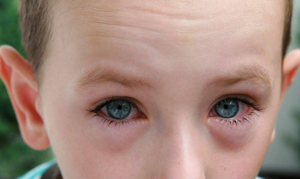 Как выбрать противовоспалительные капли для глаз