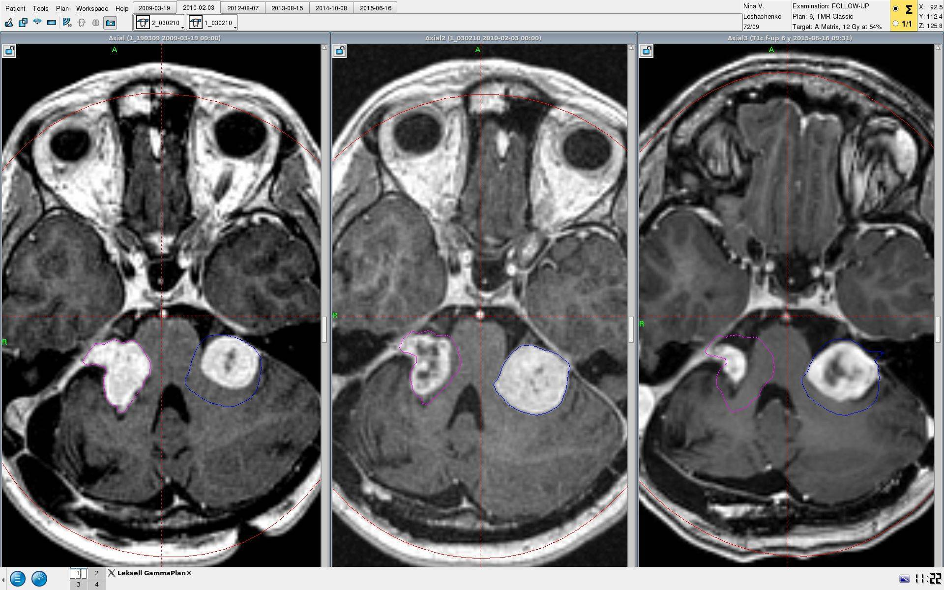 Невринома слухового нерва, симптомы и лечение опухоли, реабилитаця — симптомы