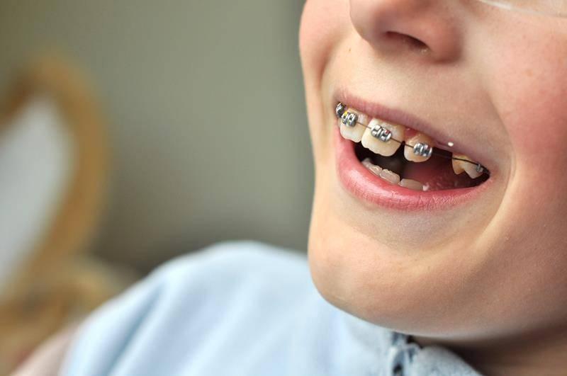 Детские брекеты: нужны ли они ребенку, какие виды лучше ставить подростку, какой врач может поставить скобы на зубы детям, фото