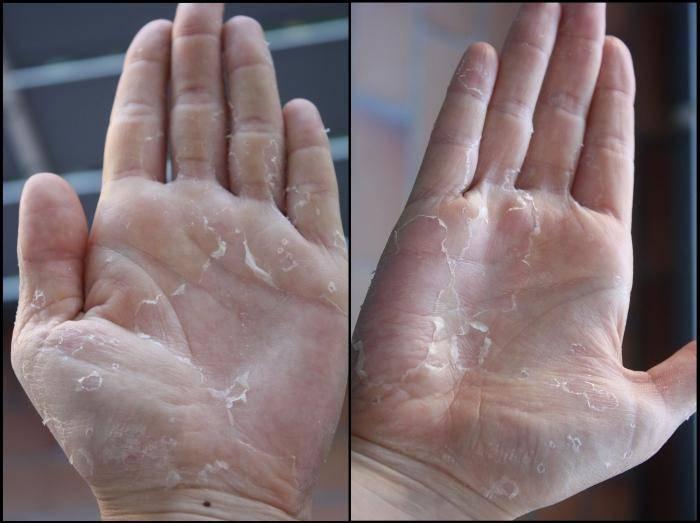 Псориаз ногтей и кожи, псориаз на голове - причины, стадии, лечение заболевания в домашних условиях и стационаре - docdoc.ru