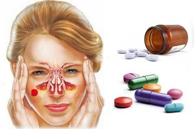 Гайморит у взрослых: симптомы и лечение в домашних условиях