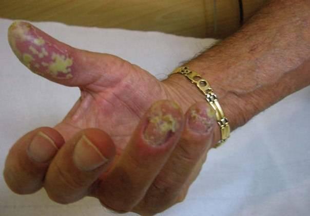 Лечение и причины ладонно-подошвенного пустулезного псориаза