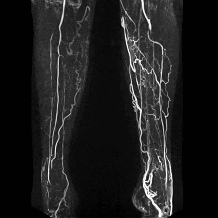 Что такое атеросклероз? признаки и причины атеросклероза сосудов