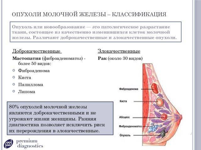 Осложнённые кисты молочной железы