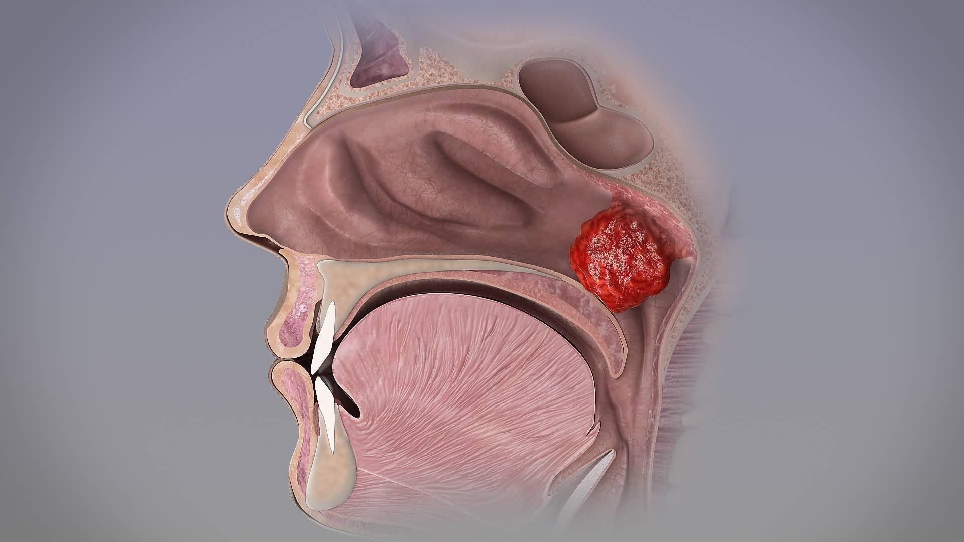 воспаление носоглотки симптомы и лечение