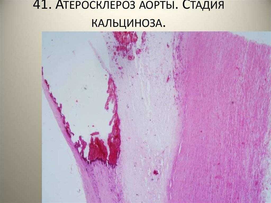 Что такое атеросклероз аорты и ее ветвей? признаки и методы лечения